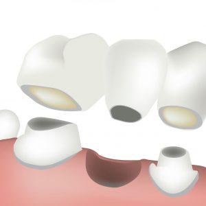 what is a dental bridge illustration