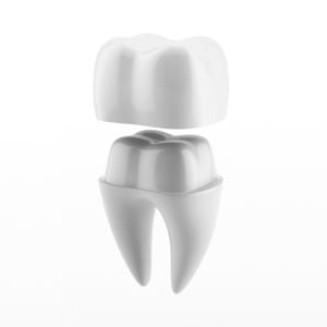Nickel-Free Crown dental crown digital example