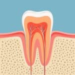 root canal inside preserve family dentistry