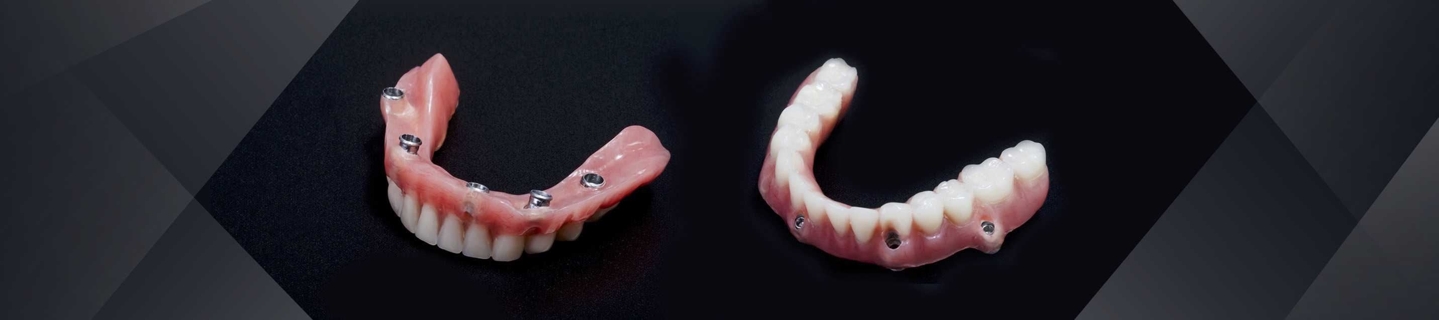 hybrid prosthesis preserve-family dentistry lincoln ne 1