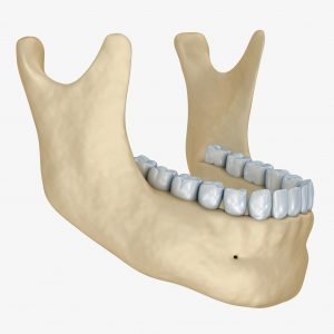 replacement teeth Lincoln NE dentist implant teeth