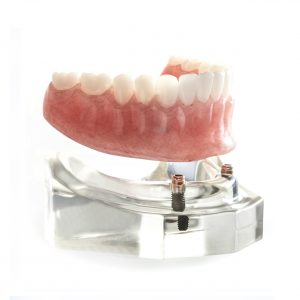 removable denture preserve family dentistry from dentists in Lincoln,NE