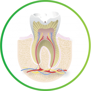 what is a root canal cavity a nebraska lincoln ne