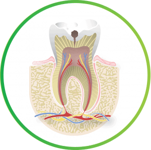 what is a root canal cavity b nebraska lincoln ne