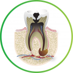 cavity in need of Safe root canal