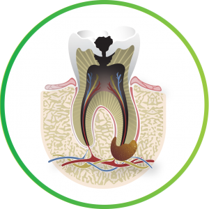 Image of a tooth showing the tooth pulp.
