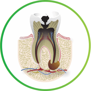 what is a root canal cavity c nebraska lincoln ne