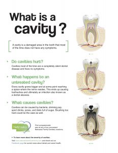 NFD What is a cavity
