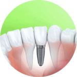 Illustration of a dental implant. Visit a Nebraska Family Dentistry Lincoln Dental Clinic location to learn more about implants and how they can help you.