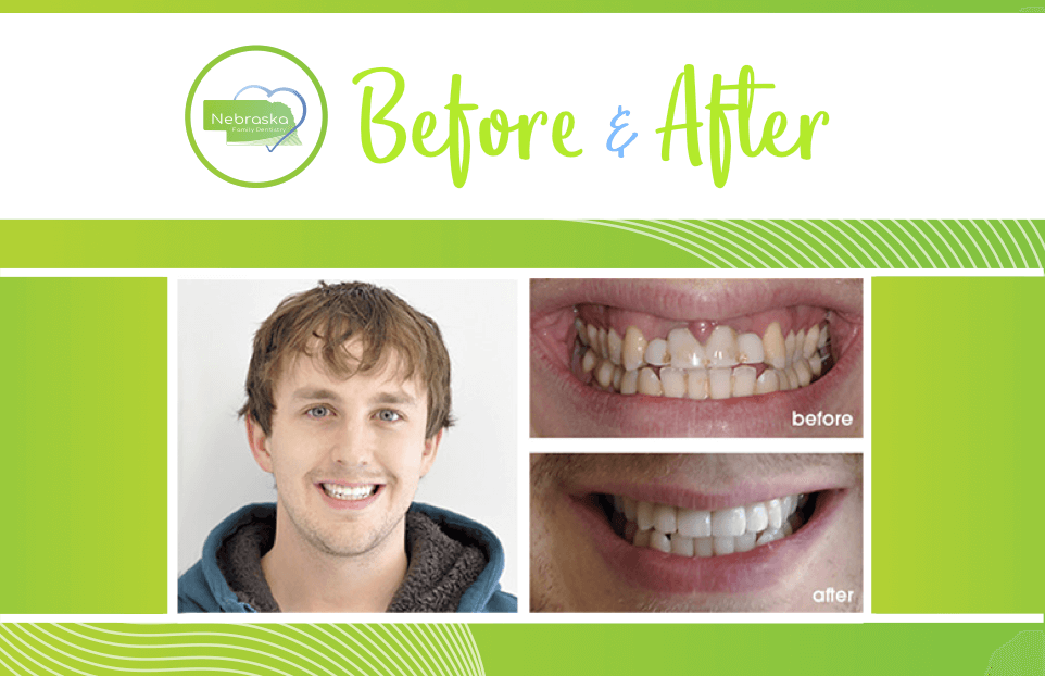 before and after case of veneers young adult patient