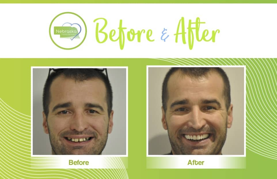 before and after case of veneers male patient