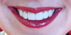 after veneers patient female