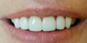 after veneers patient male