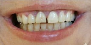 before veneers patient female