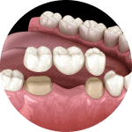 dental bridge example in lincoln ne