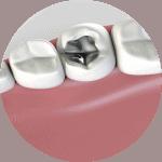 mercury free dentistry biological dentistry in Lincoln NE