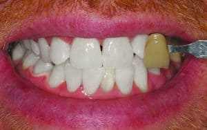 after teeth whitening for gallery of smile makeovers