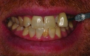 before teeth whitening for gallery of smile makeovers from dentist near me