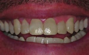 teeth gaps after example male