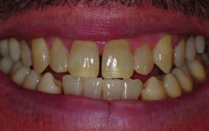 teeth gaps before example male