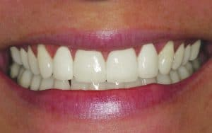 teeth gaps after example female