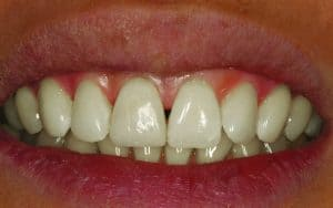After smile makeover from dentist near me