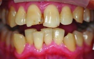 Before smile makeover from dentist near me