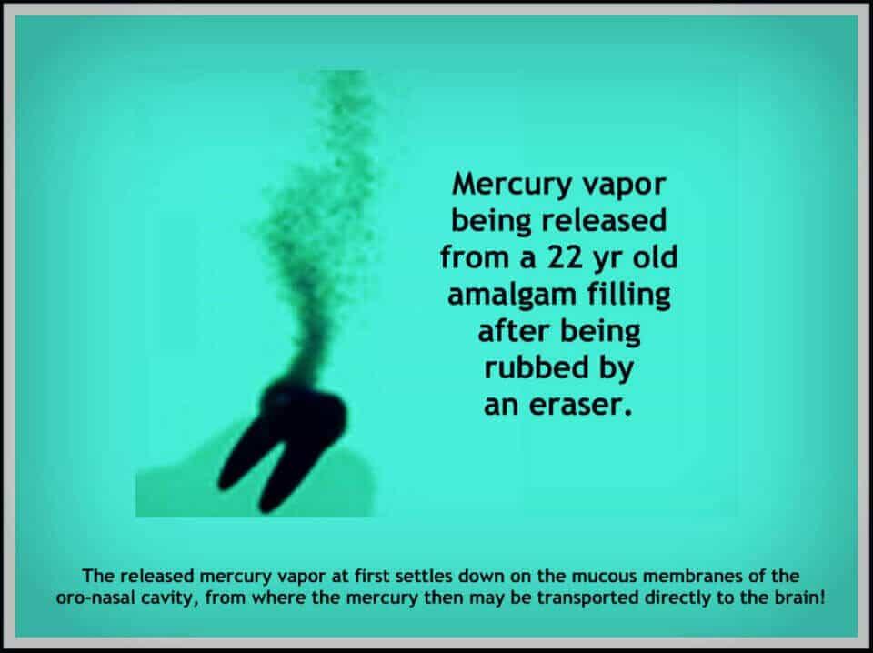 mercury vapor banner and biological dentistry in Lincoln, NE
