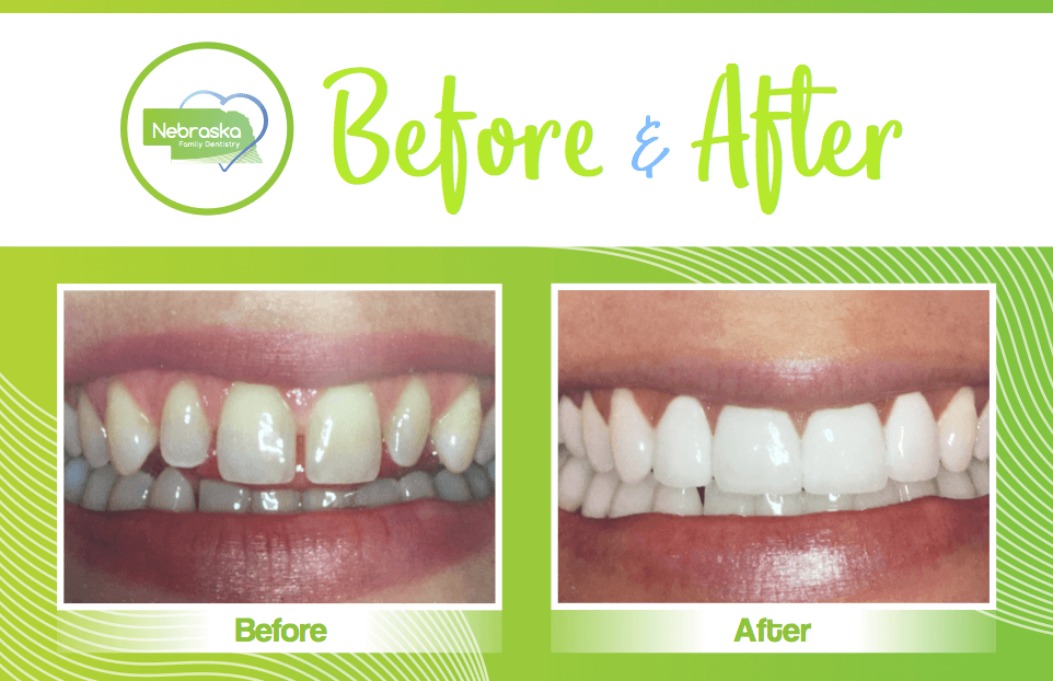 before and after from dentists in Lincoln,NE