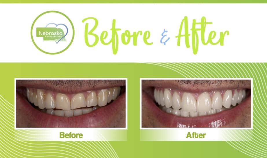 Before and after image of dental veneers used to fix teeth that suffered from bruxism, or teeth grinding.