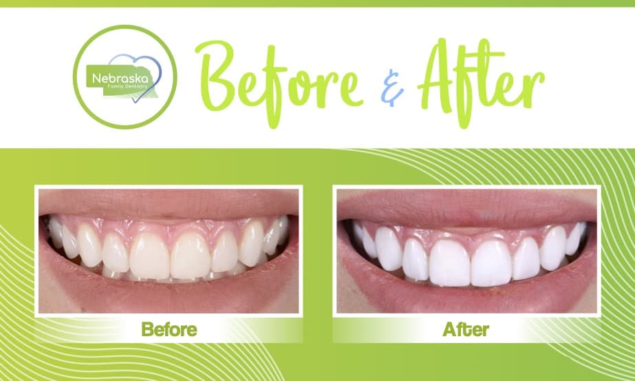 Before and after image of cosmetic dentistry with dental veneers done at Nebraska Family Dentistry in Lincoln, NE.